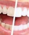 Vanløse Tandklinik